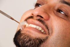 Trattamento dentale fotografia stock libera da diritti