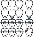 Trattamento dentale illustrazione di stock
