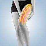 Trattamento di fisioterapia con nastro adesivo terapeutico per dolore di gamba fotografia stock