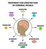 Trattamento di riduzione vascolare cerebrale Giorno del colpo del mondo Infographics Illustrazione di vettore su fondo isolato royalty illustrazione gratis