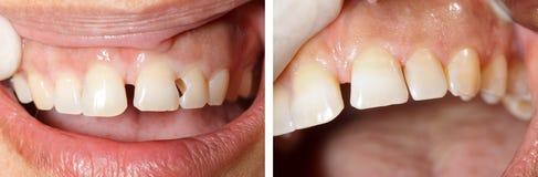 Trattamento di riempimento dentario Fotografie Stock Libere da Diritti