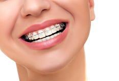 Trattamento ortodontico Sostegni dentari Fotografie Stock