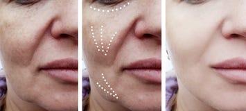 Trattamento paziente delle grinze facciali femminili prima e dopo dermatologia di procedure del collage di effetto immagini stock