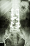 Tratto lombare della colonna vertebrale con la fissazione della vite del peduncolo Fotografia Stock