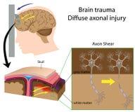 Trauma del cerebro con esquileo del axón Imágenes de archivo libres de regalías