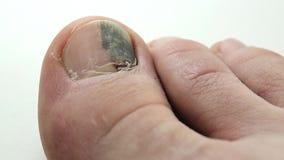 Trauma dell'unghia del piede Ematoma Subungual video d archivio