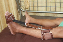 Trauma of knee and ankle apply foot sling Stock Photo