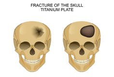 Traumatic brain injury. titanium plate. Vector illustration of traumatic brain injury. titanium plate Royalty Free Stock Photos
