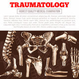 Traumatology medicine poster with bone and joint Stock Images