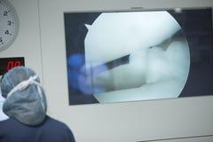 Traumatology orthopedic surgery hospital arthroscopy Stock Photo