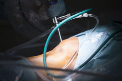 Traumatology orthopedic surgery knee arthroscopy drip. Traumatology orthopedic surgery hospital emergency operating room prepared for knee torn meniscus Stock Photo