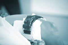Traumatology orthopedic surgery knee arthroscopy Royalty Free Stock Image