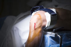 Traumatology orthopedic surgery knee arthroscopy Stock Photo