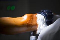 Traumatology orthopedic surgery knee arthroscopy Stock Photography