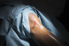 Traumatology orthopedic surgery knee arthroscopy. Traumatology orthopedic surgery hospital emergency operating room prepared for knee torn meniscus arthroscopy Stock Photography