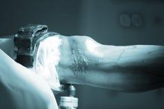 Traumatology orthopedic surgery knee arthroscopy Royalty Free Stock Photography