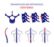 TRAUMATOLOGY AND ORTHOPEDICS. The SPINE. VERTEBRA. Royalty Free Stock Photo