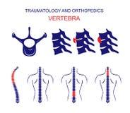 TRAUMATOLOGY AND ORTHOPEDICS. The SPINE. VERTEBRA. Royalty Free Stock Photo
