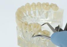 Trazione del dente Immagini Stock