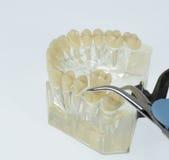 Trazione del dente Fotografia Stock Libera da Diritti