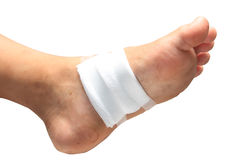 Treating patients with foot ulcers. Gauze bandage the foot,treating patients with foot ulcers Stock Photos