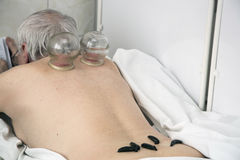 Treating people by vacuum therapy and medical leeches Royalty Free Stock Photography