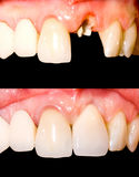 Before and after treatment. Incisive tooth restoration before and after treatment royalty free stock photo