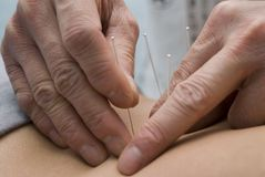 Treatment by acupuncture Royalty Free Stock Photography