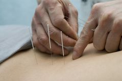 Treatment by acupuncture. The doctor uses needles for treatment of the patient Stock Image