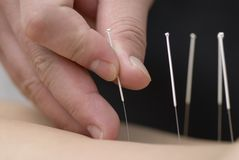 Treatment by acupuncture Stock Images