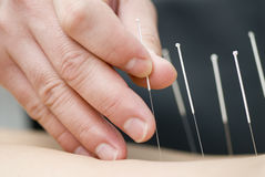 Treatment by acupuncture. Doctor uses needles for treatment of the patient Stock Photo