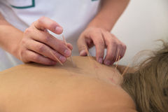 Treatment by acupuncture. Acupuncture needles on back of a young woman Royalty Free Stock Images