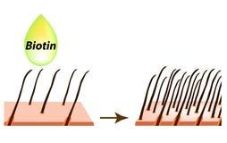 Treatment of alopecia. Vitamins hair. Biotin. Seborrhea skin and hair. Dandruff, seborrheic dermatitis. Baldness, hair stock photo