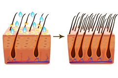 Treatment of alopecia. Vitamins hair. Biotin. Seborrhea skin and hair. Dandruff, seborrheic dermatitis. Baldness, hair stock photos