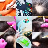 Treatment of baldness with beauty injections. Cosmetologist hands in gloves make a subcutaneous injection. Plasmalifting.  stock image