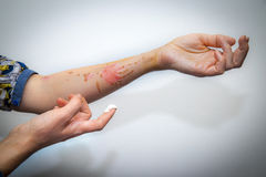 Treatment of burnt skin with cream Stock Photo