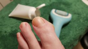 Treatment of a callus of a toe. With electric file and ointment stock image