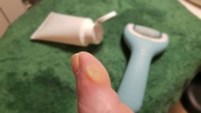 Treatment of a callus of a toe. With electric file and ointment royalty free stock images