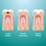 Treatment Of Caries. Dental Filling. Dental Caries Detailed Isolated On A Background. Vector Illustration. Stomatology. Teeth And Tooth Concept Of Dental Stock Image