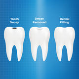 Treatment Of Caries. Dental Filling Isolated On A Background. Vector Illustration. Stomatology. Teeth And Tooth Concept Of Dental Royalty Free Stock Images