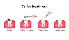 Treatment of caries. Drilling a tooth. Sealing of the tooth. Infographics. Vector illustration on  background Royalty Free Stock Images