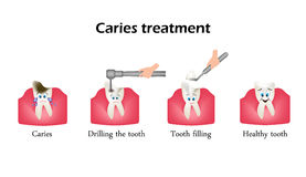 Treatment of caries. Drilling a tooth. Sealing of the tooth. Infographics. Vector illustration in cartoon style on Royalty Free Stock Image
