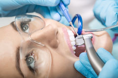 Treatment at dentist's office. Macro photo of the teeth treatment in the dentist's office. Girl with open mouth in a protective glasses, hands in blue medical Royalty Free Stock Photography