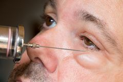 Treatment of the diseased eye. Examination of the sick eye and eyelid in the hospital. Doctor with injection treats the eyes of a man. Treatment of the diseased Stock Image