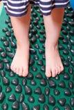 Treatment of flatfoot with massage mat Royalty Free Stock Photo