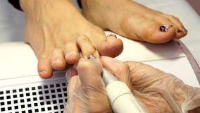 Treatment of ingrown toenails. Ingrown nail. The doctor is a podiatrist. Hardware pedicure. Podiatry. stock video footage