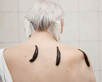 Treatment with leeches shoulder and neck area, back area in the Stock Photography
