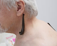 Treatment with leeches shoulder and neck area, back area in the Stock Image
