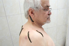 Treatment with leeches shoulder and neck area, back area in the Stock Photos