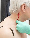 Treatment with leeches shoulder and neck area, back area in the Royalty Free Stock Photography